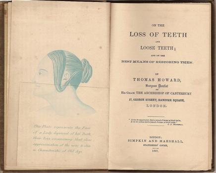 On the Loss of Teeth and Loose Teeth, and the Best Means of Restoring Them. Thomas Howard.